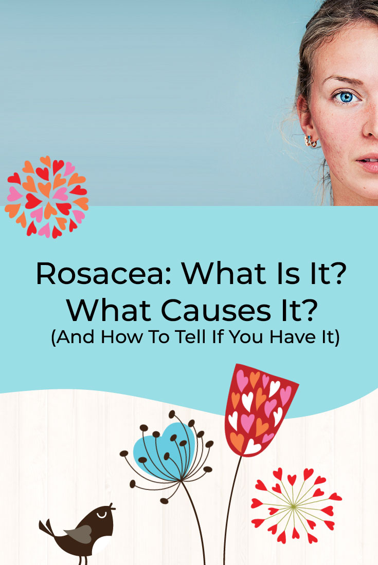 Rosacea: What Is It? What Causes It? (And How To Tell If You Have It)